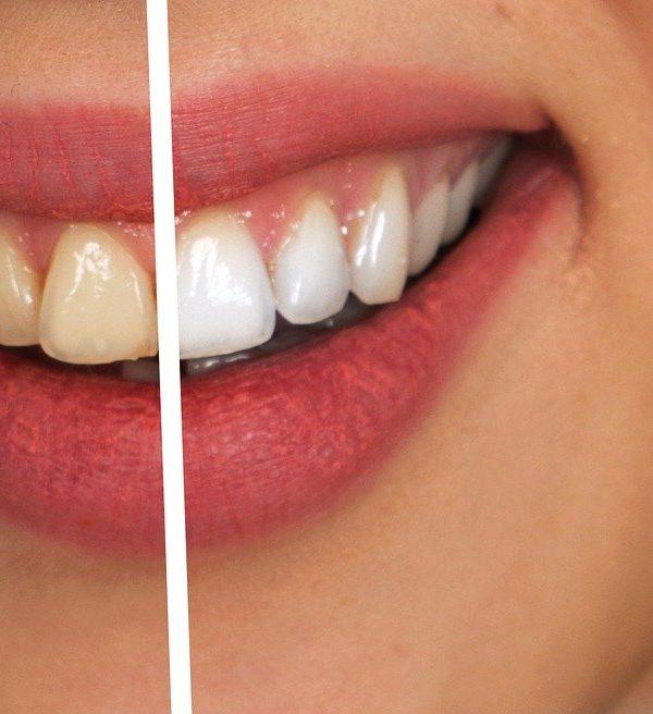 Zähne, Bleaching